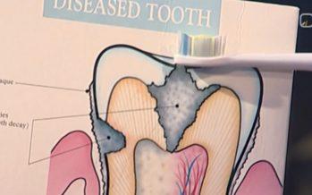 """""""Ringvaates"""" esitleti nutikat hambaharja, mis tuvastab hambaauke"""